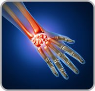 Arthritis in a hand